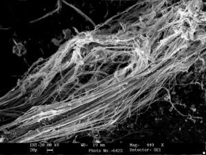 Chrysotilasbest im Bodenbelag bei 449 facher Vergrößerung